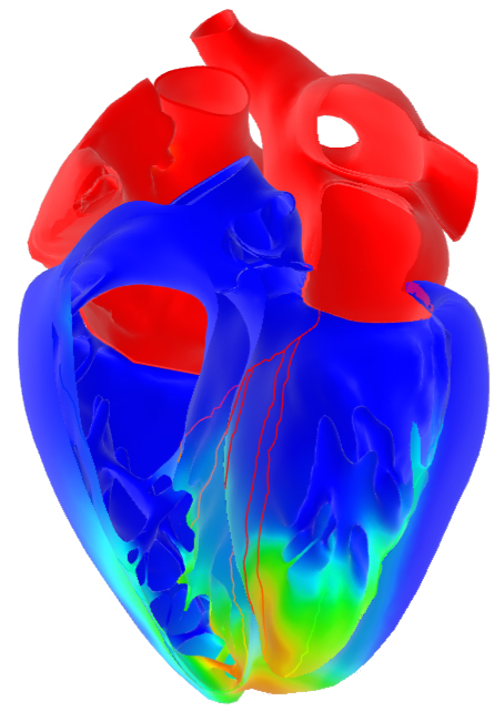 Digital Twin FEA and CFD for Orthopedics, Medical and BioMedical Device Industry